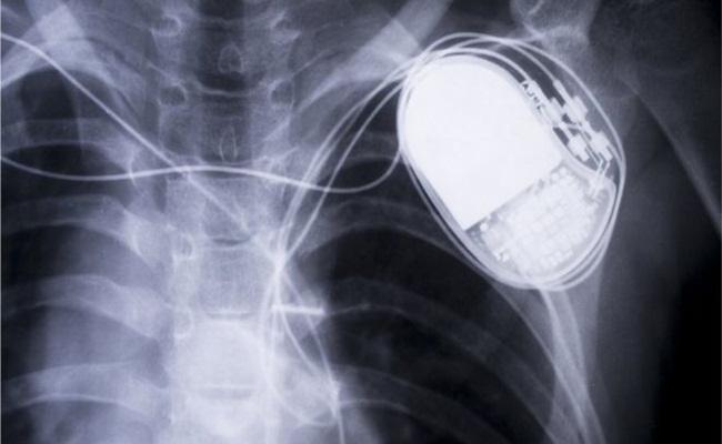 pacemakers wireles - Polemik Kerusakan 745,000 Alat Pacu Jantung Berujung Tuntutan Hukum